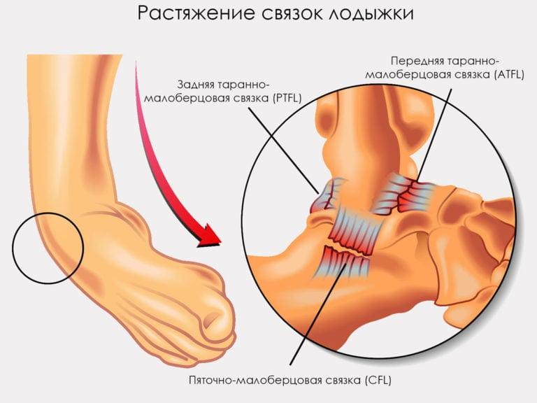 Срок лечения растяжения связок стопы thumbnail