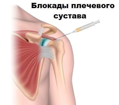 Остеоартроз плечевого сустава особенности заболевания