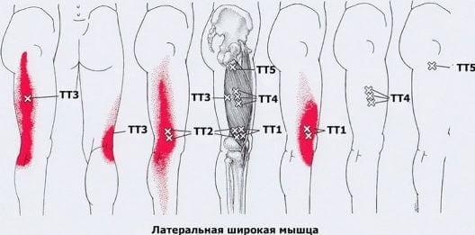 Болят мышцы ног и бедер в домашних условиях