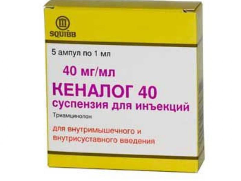 Уколы для суставов: для чего делают, какие виды внутрисуставных уколов бывают, сколько стоит процедура в Москве?