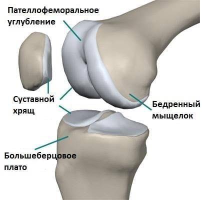 Пателлофеморальный артроз коленного сустава 3 степени лечение без операции