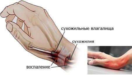 Тендовагинит кисти характеристика методы лечения и профилактика