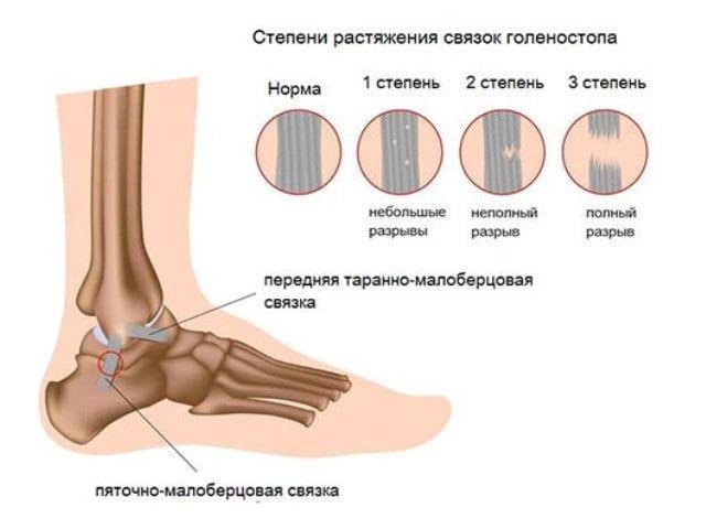 Лечение и симптомы растяжения связок стопы