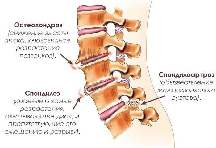 Остеохондроз спондилоартроз поясничного отдела позвоночника лечение