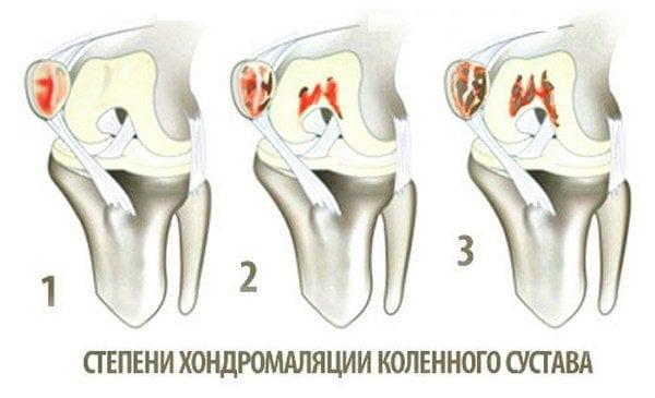 Изображение - Лфк при хондромаляции коленного сустава stepeni-hondromalyatsii