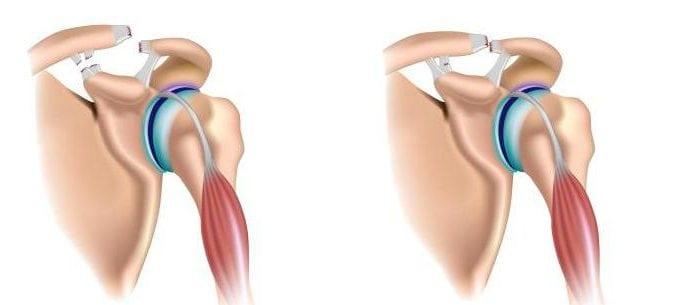 Частичный разрыв сухожилия надостной мышцы плечевого сустава