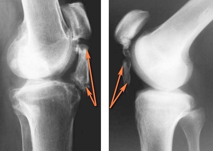 Лигаментит медиальной боковой связки коленного сустава