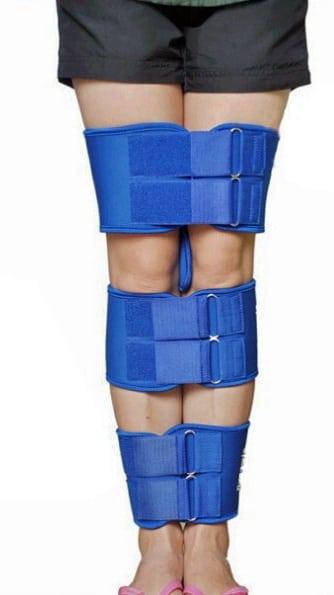Вальгусная деформация коленей: причины, симптомы, лечение