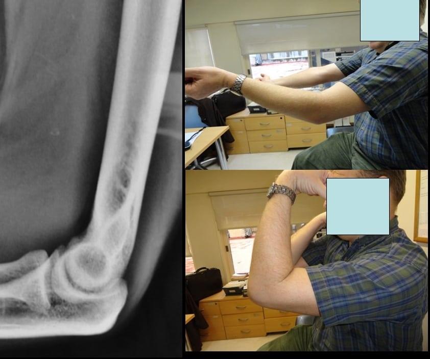 Изображение - Контрактура локтевого сустава как лечить 5760
