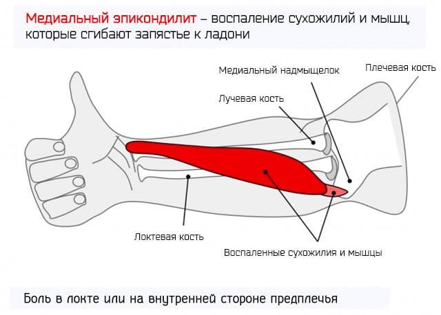 Эпикондилит локтевого сустава причины диагностика лечение профилактика
