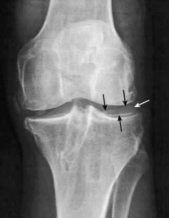 Изображение - Вальгусная деформация коленных суставов у детей B9781416054740000072_gr110