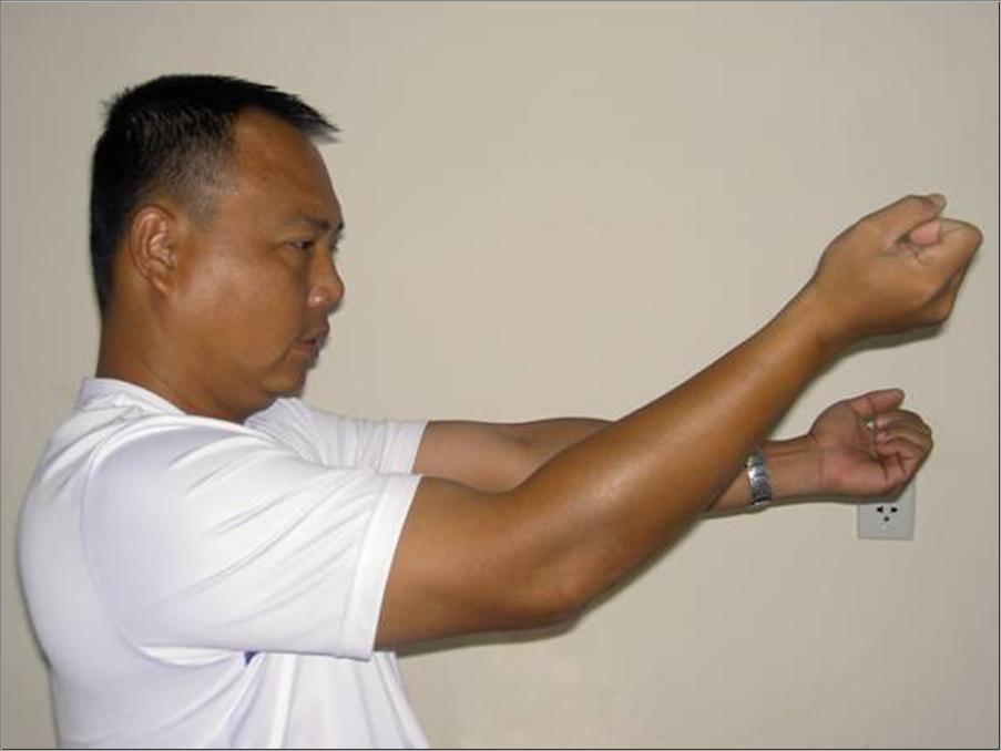 Изображение - Контрактура локтевого сустава как лечить Elbow-Contracture