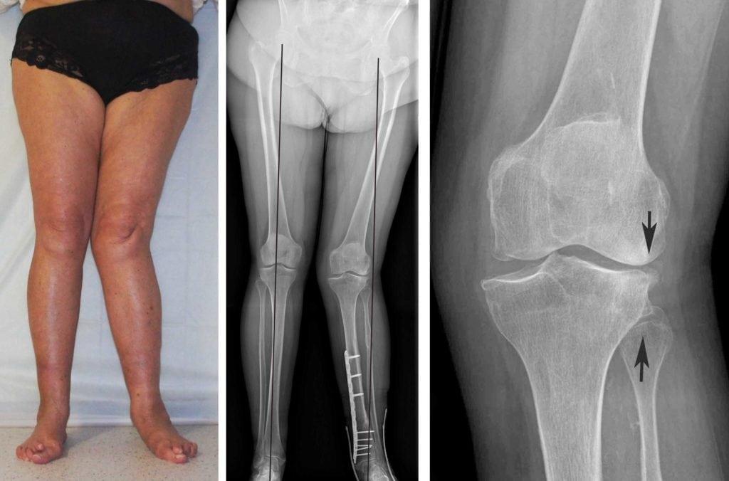 Изображение - Вальгусная деформация коленных суставов у детей Osteotomy1-1024x676