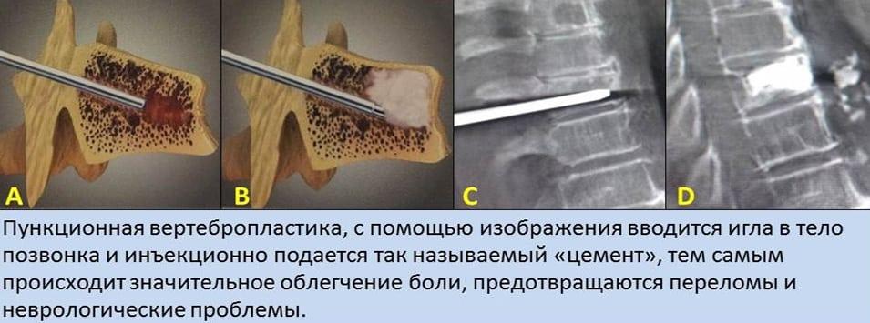 Остеопороз поясничного отдела позвоночника протрузии thumbnail