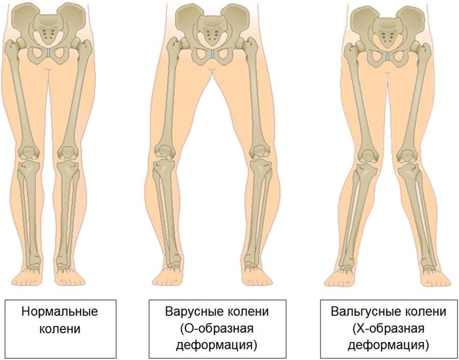 Изображение - Вальгусная деформация коленных суставов у детей Varusnaya-deformaciya-goleni