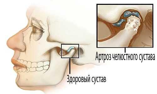 Изображение - Артроз височно нижнечелюстного сустава лечение artroz_chelyusti_12