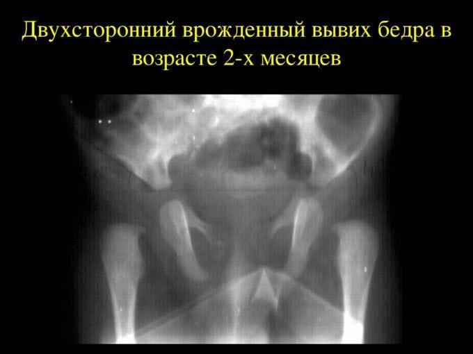 Фото вывиха тазобедренного сустава у ребенка