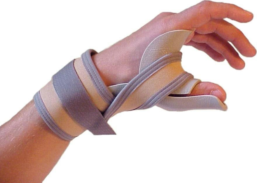 Растяжение связок кисти палец