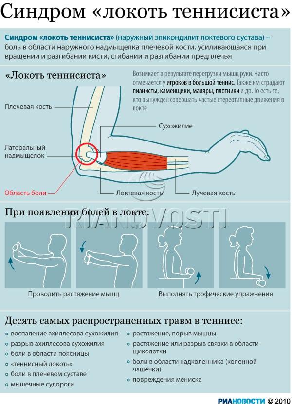 Воспаление плечевого локтевого сустава