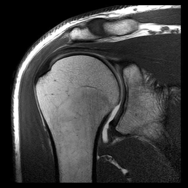 Что показывают и как проводятся МРТ и КТ плечевого сустава