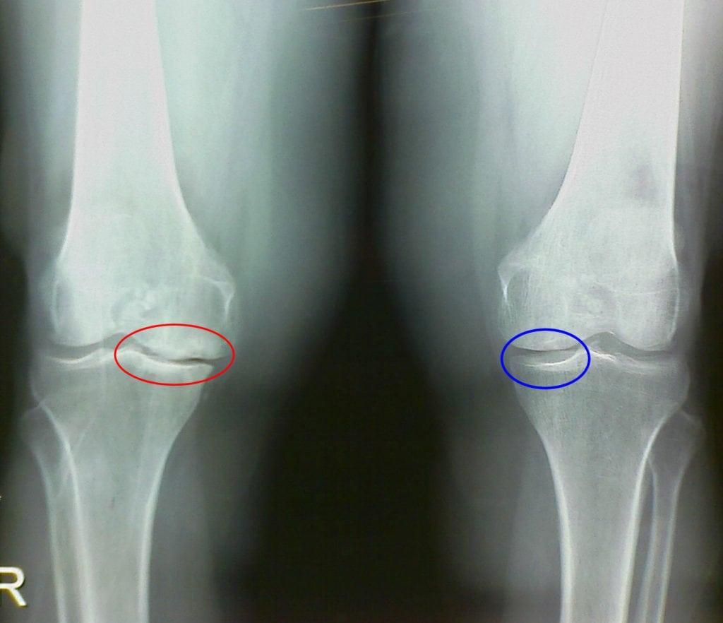 Хондропротекторы при артрозе коленного сустава хондроитин
