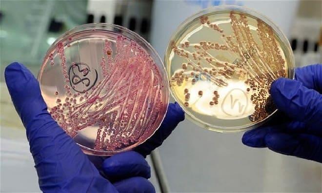 Изображение - Лечение воспаления суставов антибиотиками vredonosnaya-palochka-koha