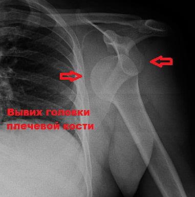 Последствия разрыва связок плечевого сустава