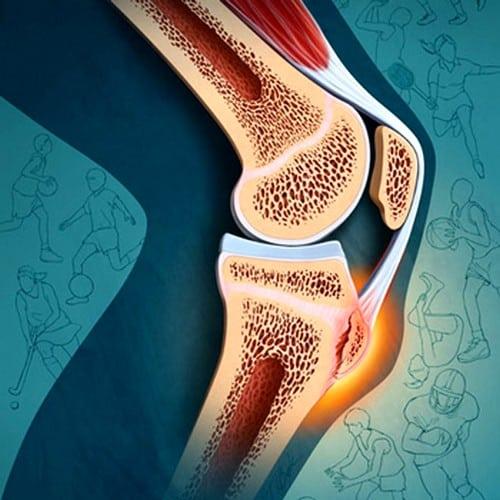 После бега болят колени – что делать и в чем причины