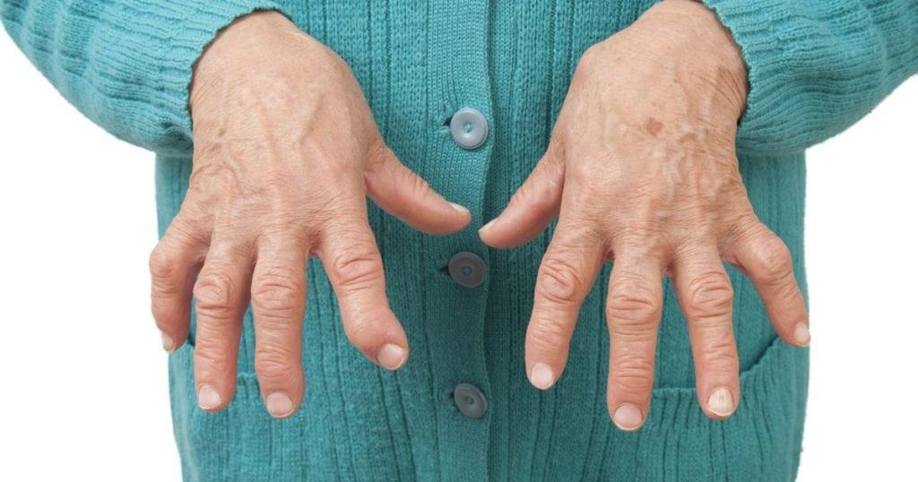 Артрит пальцев рук симптомы и лечение фото