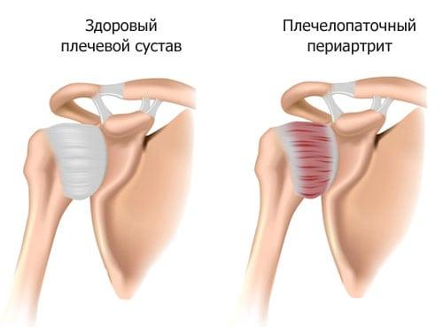 Изображение - Хрустят суставы плеча причины 261-1
