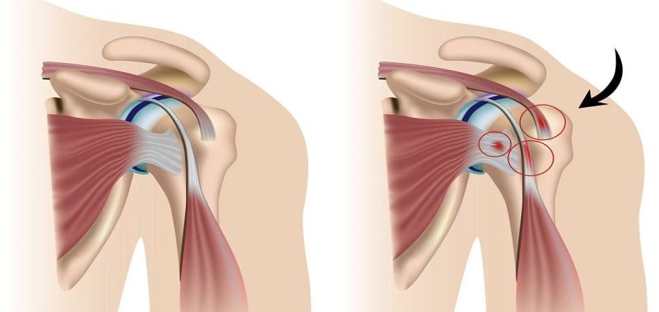 Эпикондилит плечевого сустава что это такое thumbnail