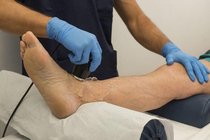 Ушибы растяжения голеностопного сустава