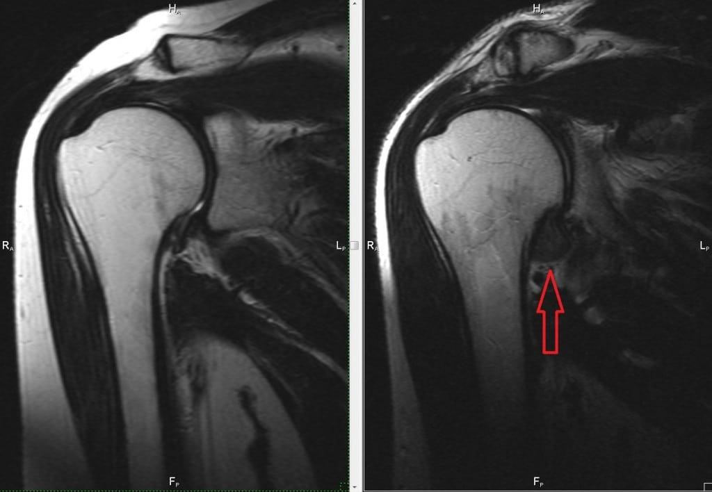 Лечение адгезивного капсулита плечевого сустава