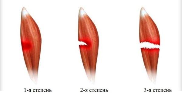 Разрыв и надрыв связок икроножной мышцы сроки лечения восстановления и реабилитация после травмы