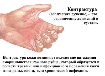 Мышечная контрактура что это такое как лечить