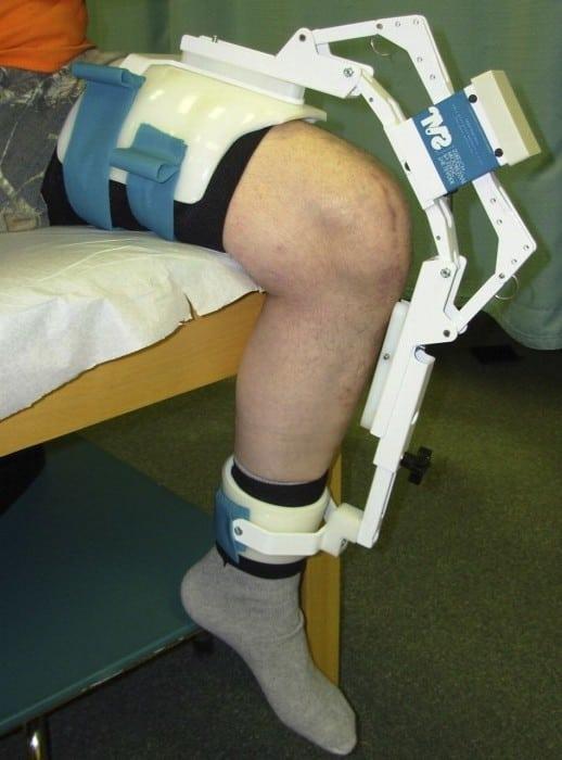Как можно вылечить контрактуру коленного сустава? Контрактура коленного сустава: лечение в домашних условиях