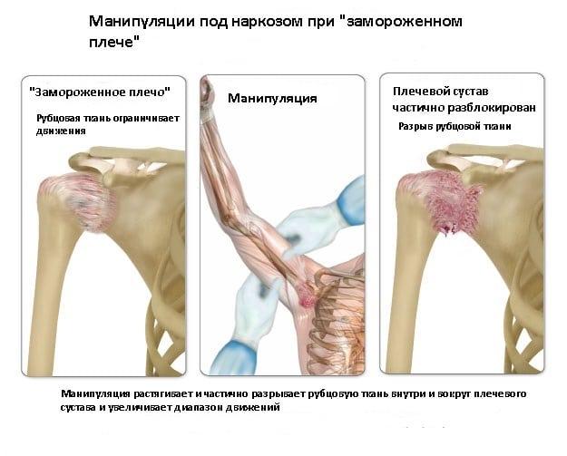 Диагностика и лечение воспалительных заболеваний плечевого сустава