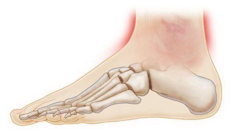 Ушиб ноги в лодыжке что делать