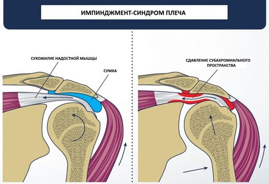 Изображение - Импиджмент левого плечевого сустава impidzhment-sindrom