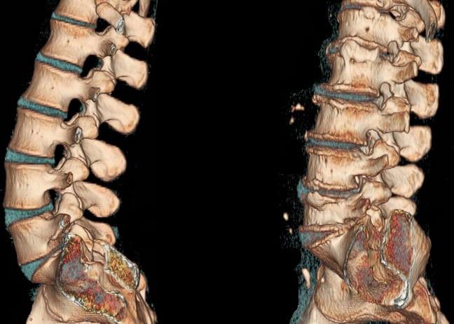 Симптомы остеохондроза: первые признаки, как проявляется заболевание, характерные синдромы