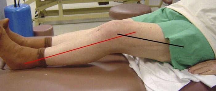 Реабилитация коленного сустава после травмы