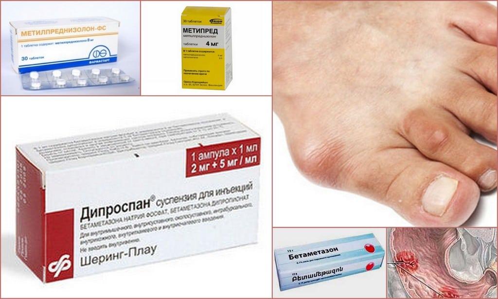 побочные эффекты наркотических анальгетиков курсовая