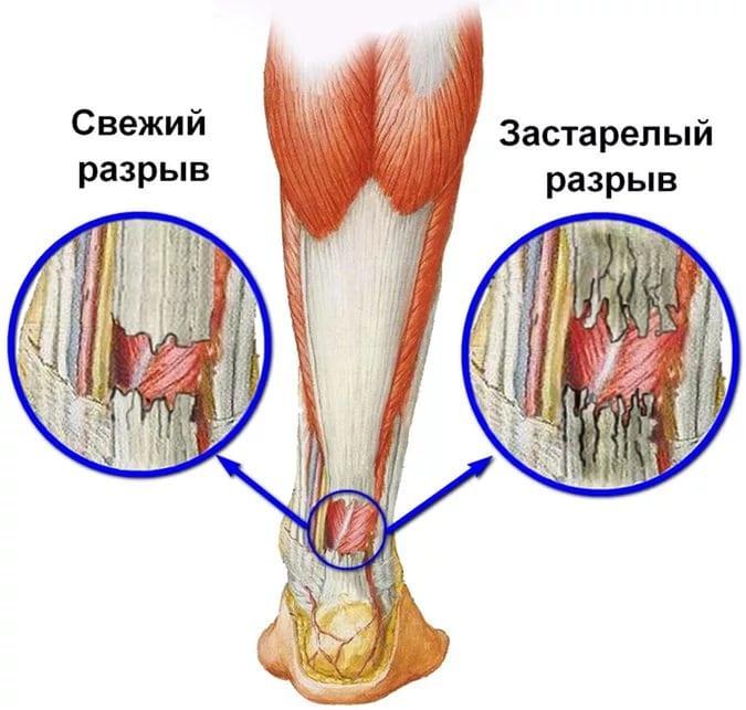 Разрыв ахиллова сухожилия симптомы лечение и последствия травмы