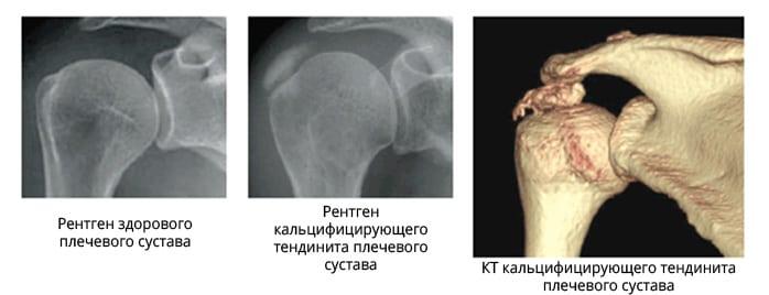 Изображение - Хрустят суставы плеча причины tendinit-na-rentgene