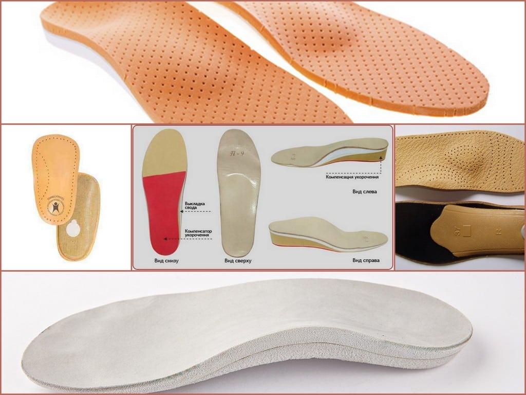 Ортопедические стельки при вальгусной деформации
