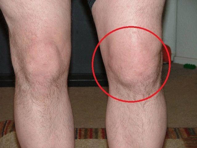 Изображение - Подагра коленного сустава 121