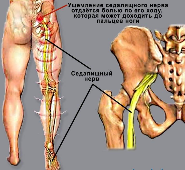 Тупая боль в бедре и ноге