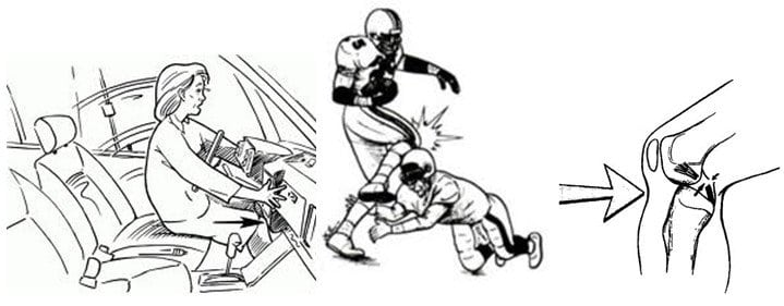 Изображение - Разрыв задней крестообразной связки коленного сустава симптомы 2-4