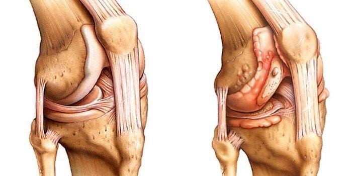 Артрит артроз коленного сустава симптомы и лечение