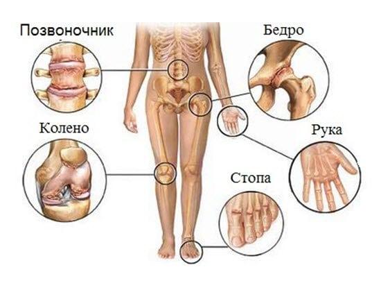 Хламидийный артрит — симптомы, диагностика и лечение